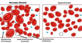 Hypochromie