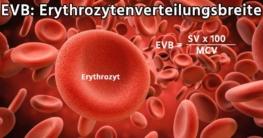 EVB: Erythrozytenverteilungsbreite