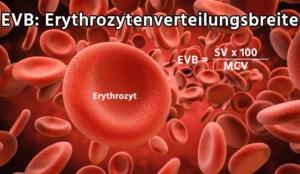 Erythrozytenverteilungsbreite