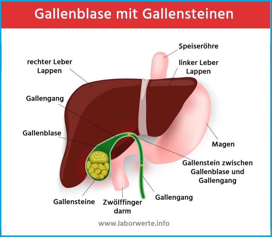 Gallenblase und Gallensteine