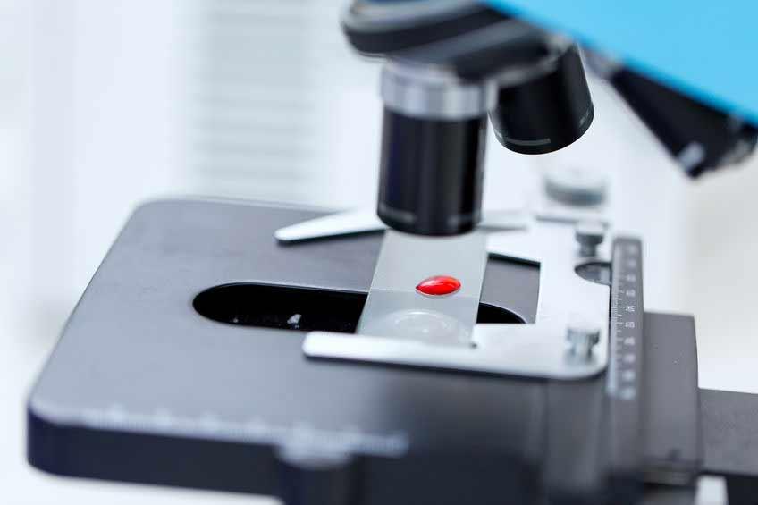 Blutbild mit Mikroskop