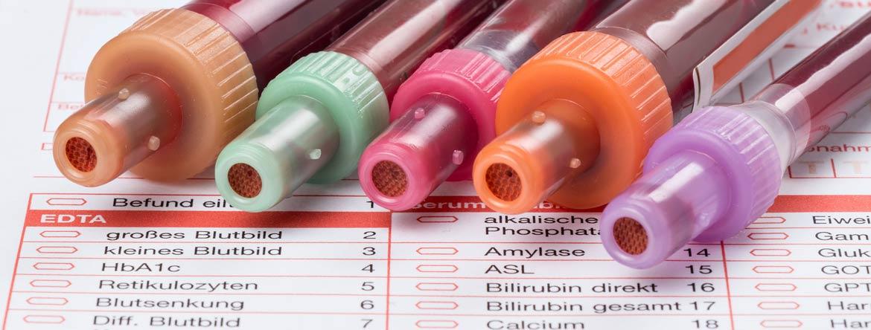 Blutwerte und Laborwerte