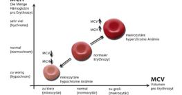 Erythrozytenindizes
