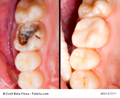Karies am Zahn