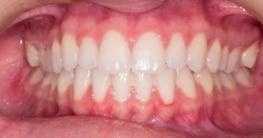 Gesundes und schönes Zahnfleisch