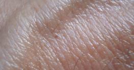 Der Ablauf von einer Hautkrebsvorsorge