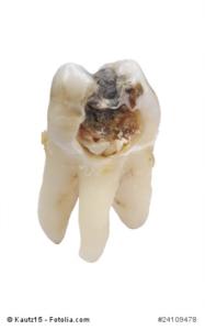 Zahnbeschädigung durch Karies