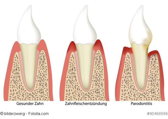 Parodontitis Krankheitsbild