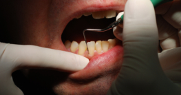 Nähere Untersuchung von Zahnfleischtaschen