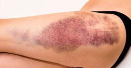 Die Ursachen von Haut- und Gewebeverletzungen