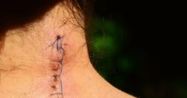Die Behandlung bei Narbenschmerzen